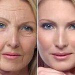 Anti Aging - Aging pic