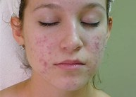 Acne Skin Care Review - Pic of girls face
