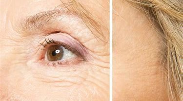 best anti-wrinkle skin care products - Eye Wrinkles