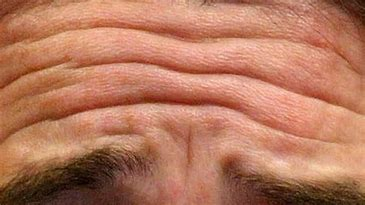 best anti-wrinkle skin care products - Forehead wrinkles