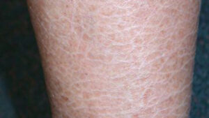 Pic of ichthyosis