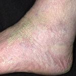 dry skin - Pic of dry skin4