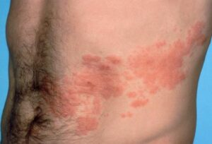 shingles treatment - pic 1