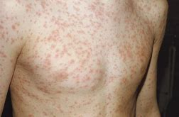 Chickenpox - Pic of the measles
